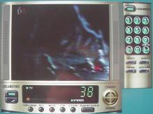 Takto vypadá televiznín obrazovka na počítači.